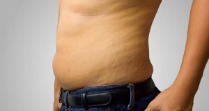 man with stretch marks on his side has started using Malegenix supplement
